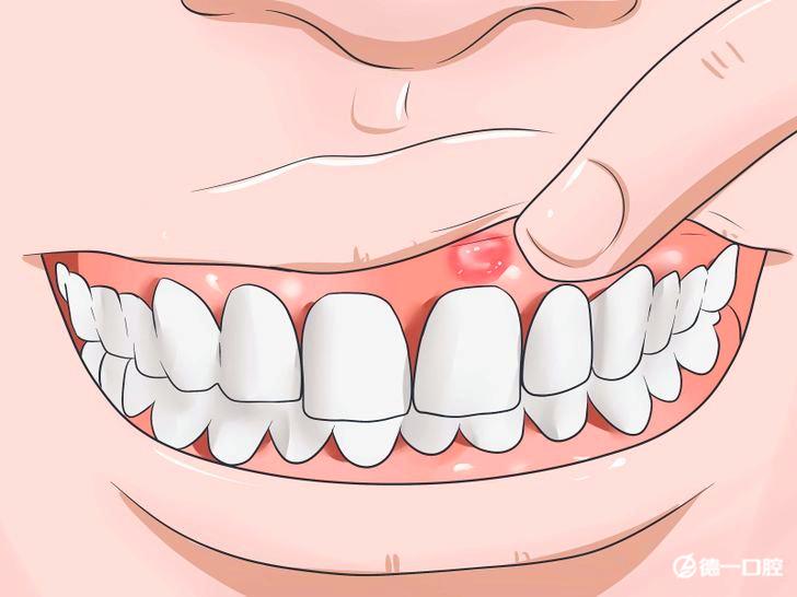 """牙龈肿痛怎么办?并非都是""""上火""""的错!"""