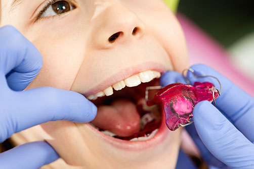 """Early intervention of children 's teeth""的图片搜索结果"