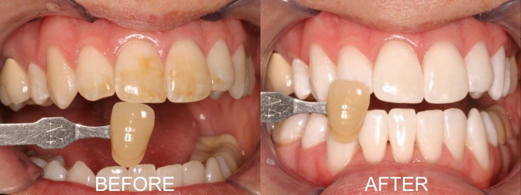 whitening-before-after-1024x384.jpg