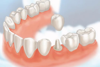 Dental-Crowns.jpg